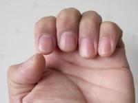 「爪を噛むクセ」にあらわれる精神状態と対策法とは?